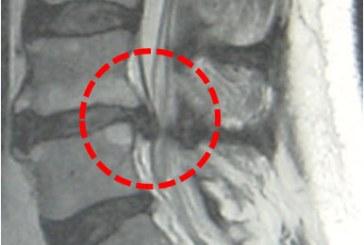 Incorporación de hernia discal en el LEP