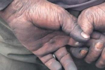 Colombia: Sobrevivir del carbón los tiene enfermos y en oscuro drama