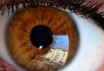 España: Rechazan la incapacidad de un trabajador que perdió parte de la visión en un accidente laboral
